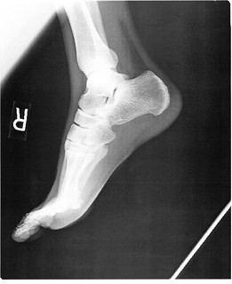 Foot Right x-ray 002 - no info | by akeg
