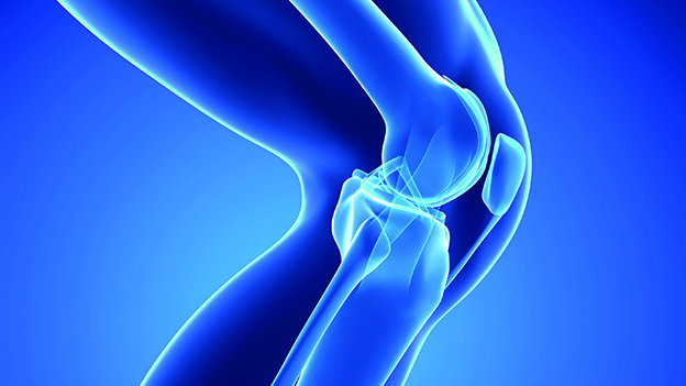 Modern knee replacement relieves the pain and disability of knee osteoarthritis
