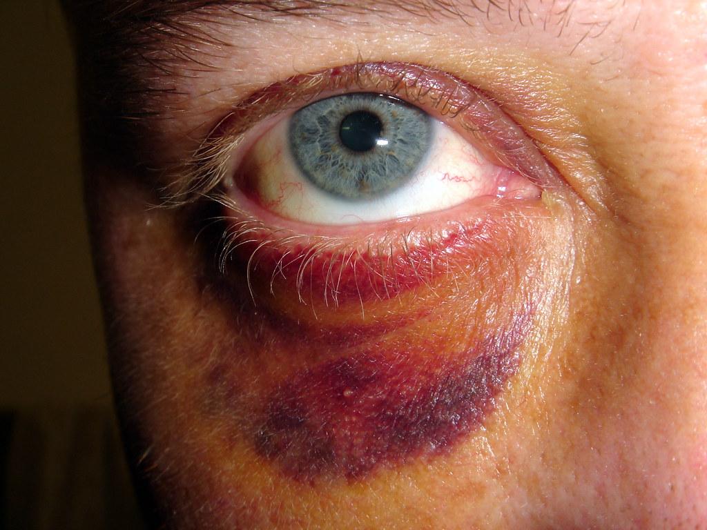 Что делать если с синяком глаз