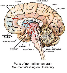 Cross section human brain 2 intracranial flickr cross section human brain 2 by intracranial ccuart Images