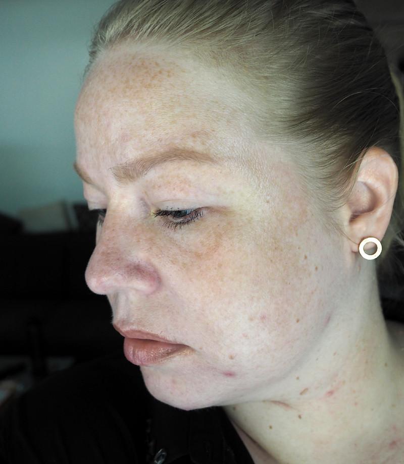 vitiligo pale freckled skin