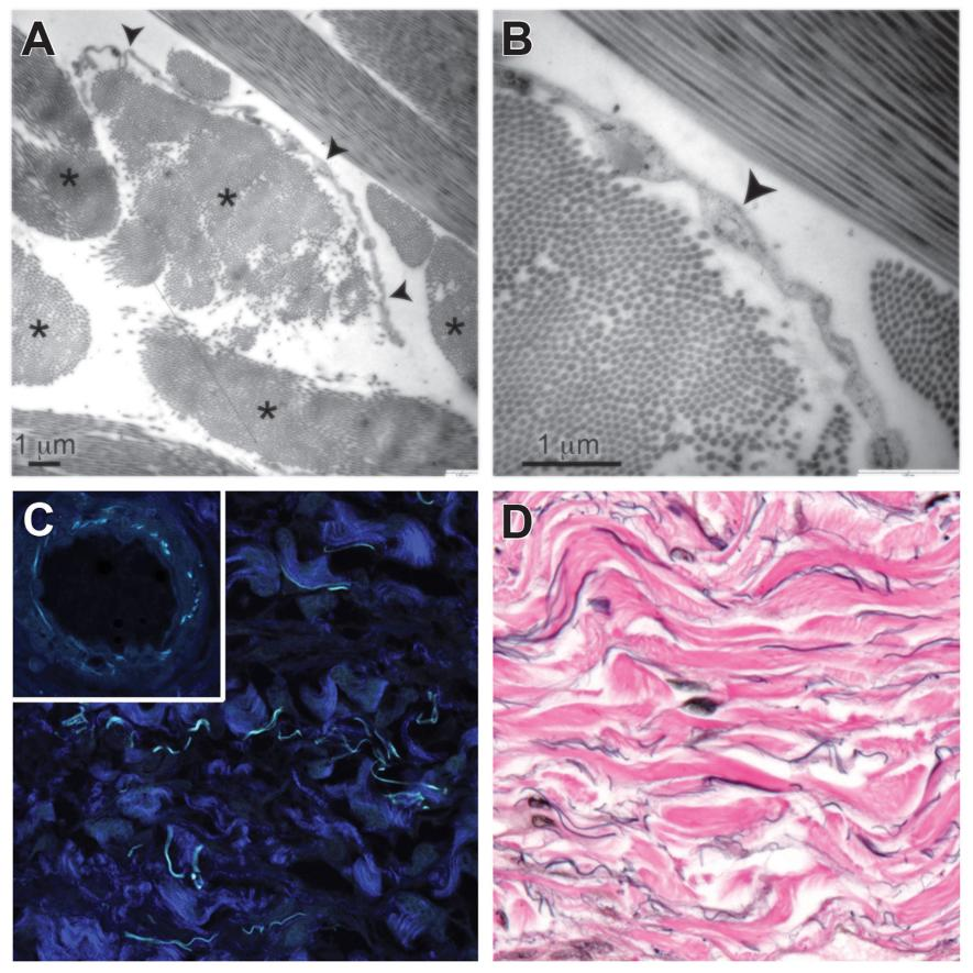Asterisks denote collagen bundles (top left). An arrow points to a cell (top right). Darker blue shows collagen bundles, and light blue reveals what may be elastin (bottom left). Elastin fibers shown in black run along collagen bundles shown in pink (bottom right). Photograph by Neil Theise and David Carr-Locke, Scientific Reports.
