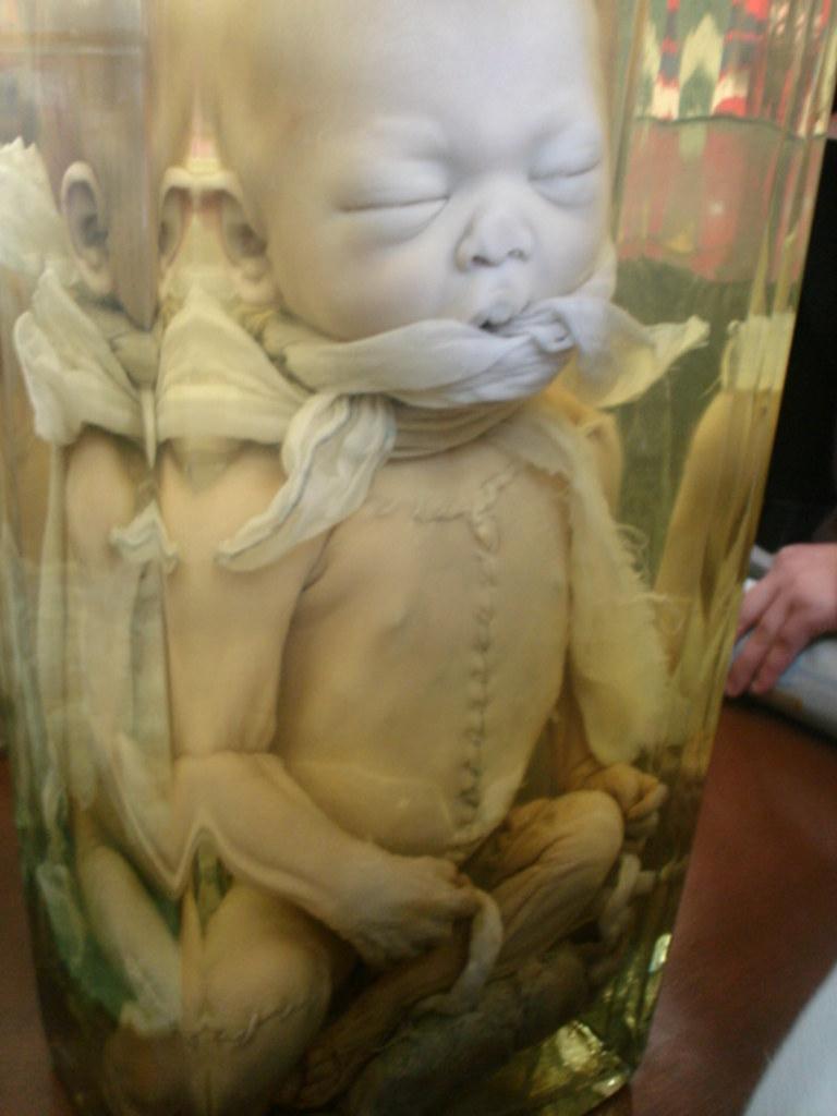 Museo de Anatomía- Universidad de Concepción[1] | bebé (DE V… | Flickr