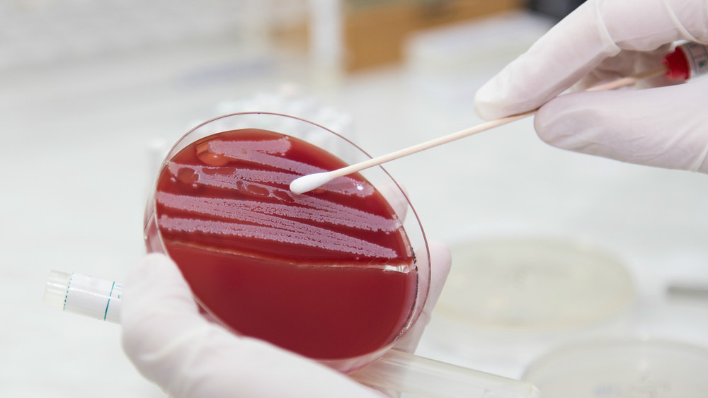 Low toxin MRSA strains may be the real killer, according to our latest research
