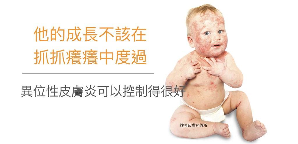 異位性皮膚炎的另外一個名稱是濕疹,異位性皮膚炎是一種皮膚病。美上美皮膚科專治不同型態的異位性皮膚炎。