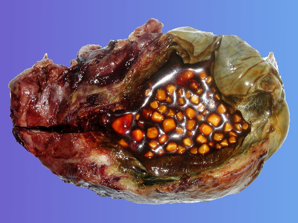 gallbladder stones | These are gallstones in the ...