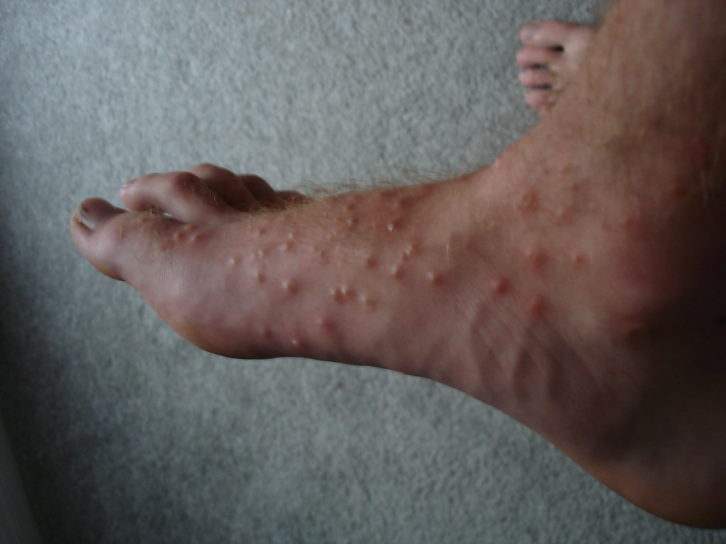 Chiggers Bites on Hands Chigger Bites on Foot   by