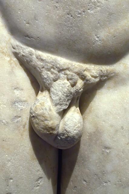 Broken Penis Pics 101