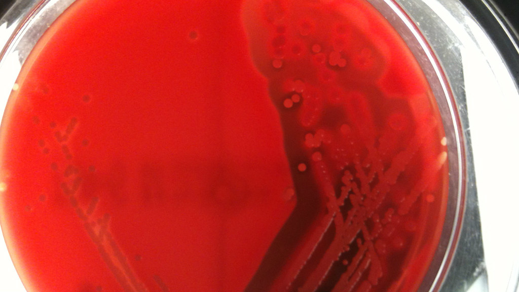 petri dish of MRSA