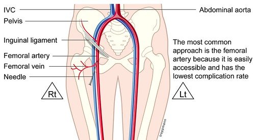 femoral vein cathetor   randy.troppmann   Flickr
