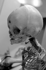 Young skeleton (National Museum of Health and Medicine) | by James Mundie
