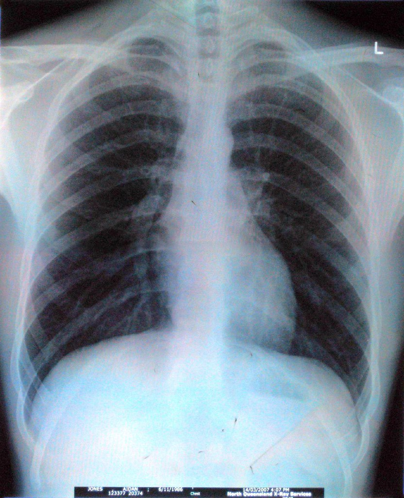 chest x-ray | This is my chest x-ray that I had done in Town… | Flickr