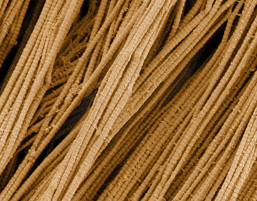 scanning electron microscopy of collagen fibers