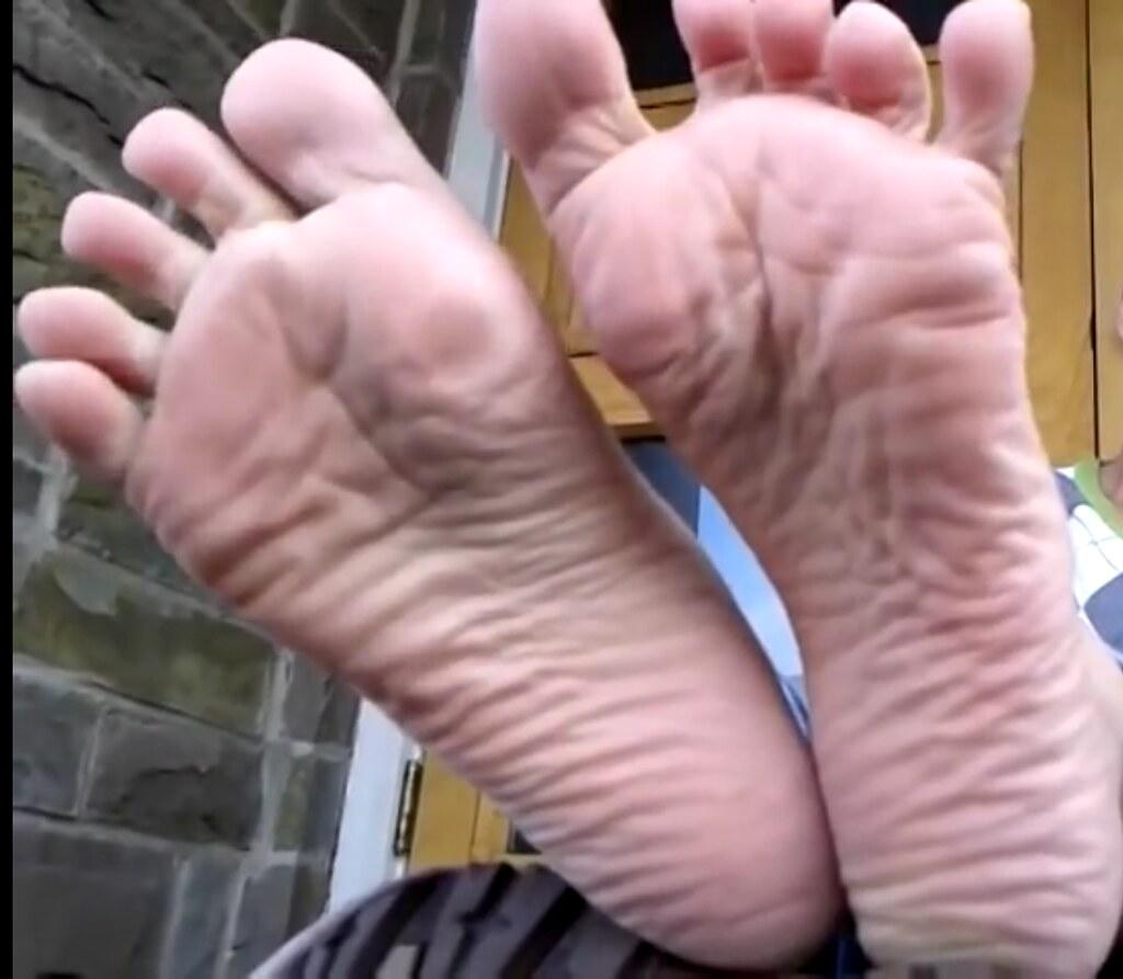 Soft wrinkled soles pics