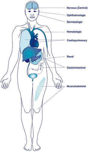 Systems Potentially Affected by Lupus | by National Institutes of Health (NIH)