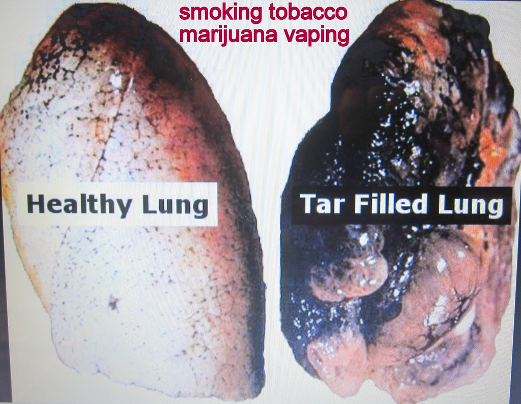 second hand smoke normal pink lung vs smokers lung strok flickr