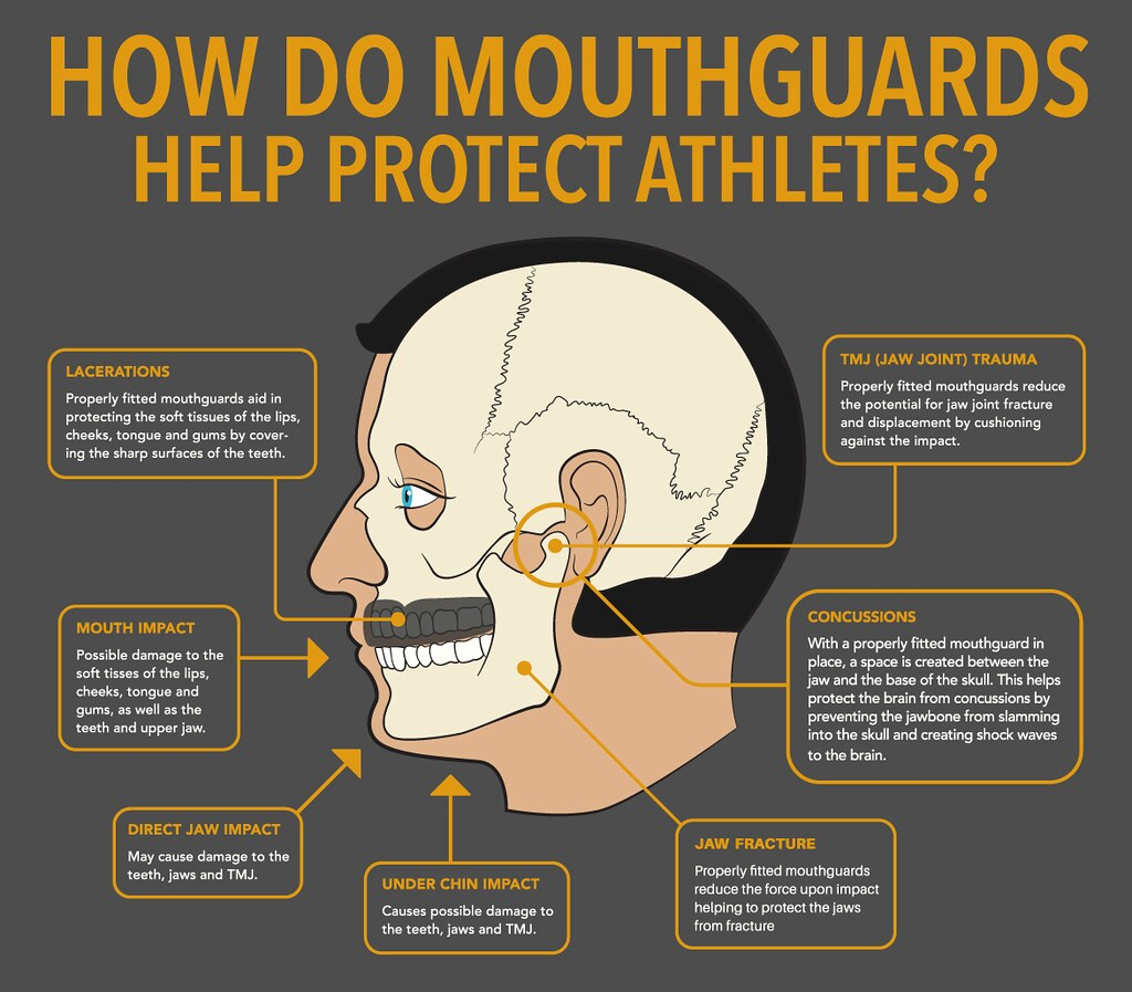 How do Mouthguards Protect Atheltes