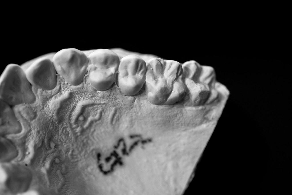 Dental Mold-6 | 2litresofsoysauce | Flickr