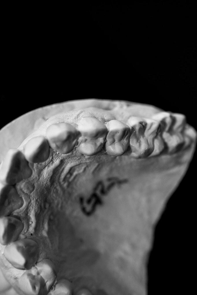 Dental Mold-5 | 2litresofsoysauce | Flickr