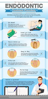 Important Things to Know About Root Canal | by eusebiobrockman