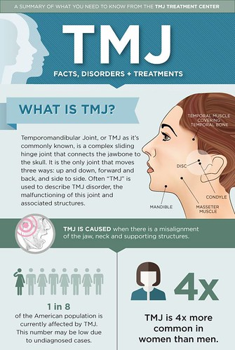 Options to Get TMJ Treated | by coyrosenthal