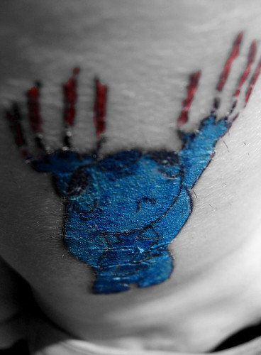 Stiched Leg Tattoo: Scabby Tattoo On Leg-only A Couple