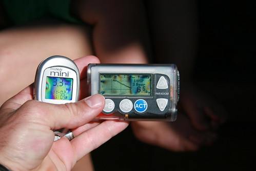 CGM and monitor comparison | by brad kane