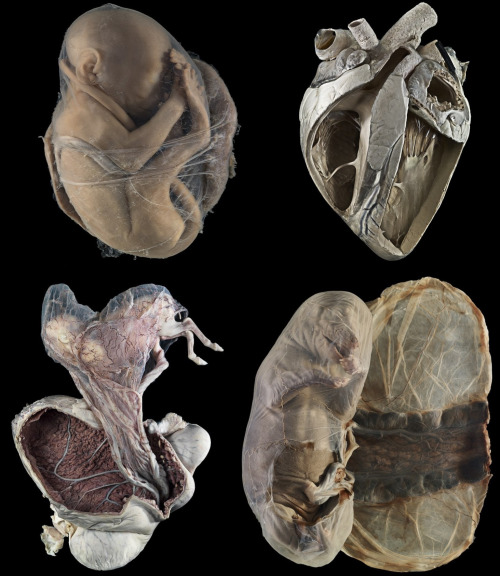 Clockwise from top left; a fetal monkey, a cow's heart, foetal membranes of a dog and a pregnant pony uterus