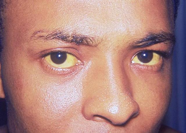 Yellow-Sclera-1.jpg
