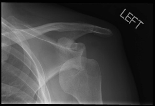 dislocated-shoulder | by garyowen