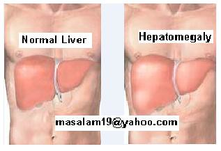 normal liver & enlarged | hepatomegaly / enlarged liver / sw… | flickr, Skeleton