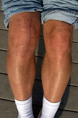 mike-baird-knee-11-6-07_18-weeks-after-6-20-07-surgery