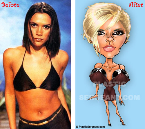 Celebrity plastic surgery cosmetic