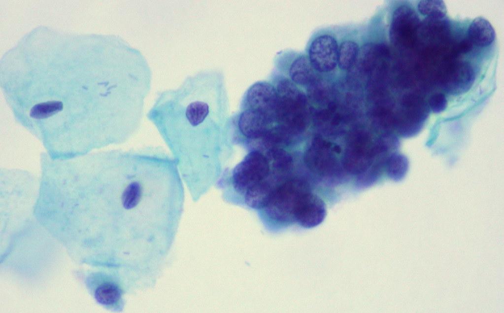 pap thinprep adenocarcinoma in situ ed uthman flickr