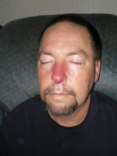 Staph Infection Up Inside Nose