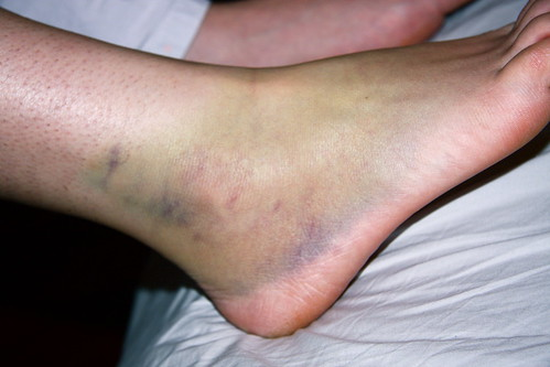 Bruised Ankle | by erikrasmussen