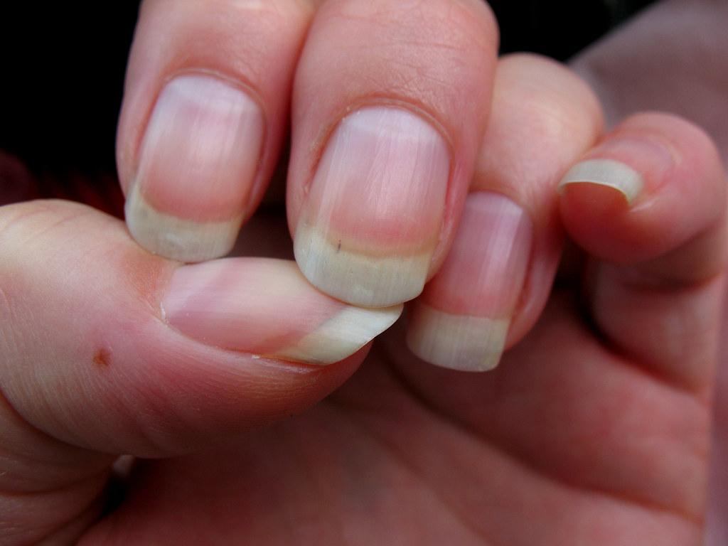 finger freckle | freckle on my finger! portrait of my left h… | Flickr