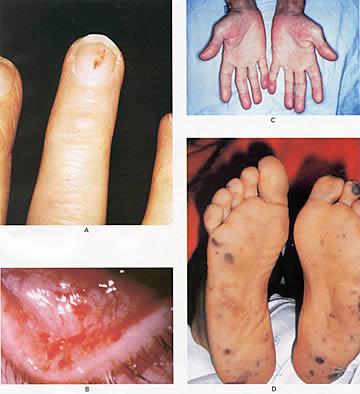 how to get rid of splinter hemorrhages