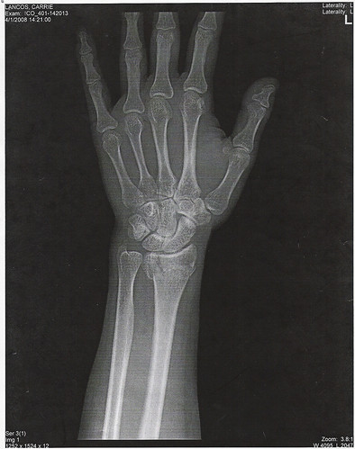 X Ray Broken Hand Wrist X-Ray 1 | Front ...