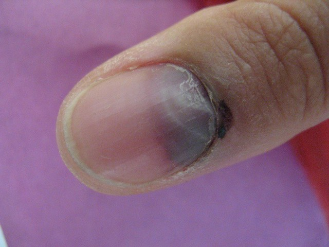 An update on my smashed thumb – On multiples and mayhem
