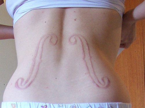 Healed Scarification | This is how my Scar looks like now ...