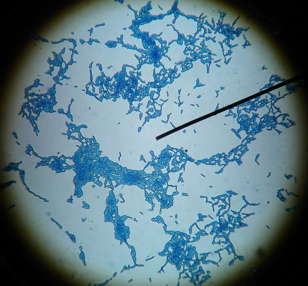 bacillus cereus Abstract bacillus cereus is becoming one of the more important causes of food poisoning in the industrialised world it produces one emetic toxin and three different enterotoxins.