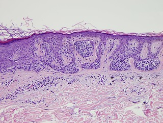 Dysplastic Nevus | by Pathology Outlines