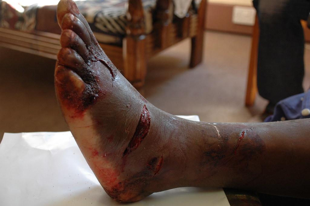 mr kashiri foot smashed with an axe manyika kashiri 55 flickr. Black Bedroom Furniture Sets. Home Design Ideas
