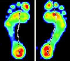 gait scan