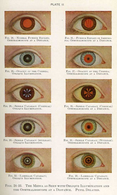 """""""Manual of the Diseases of the Eye for Students and Genera ..."""