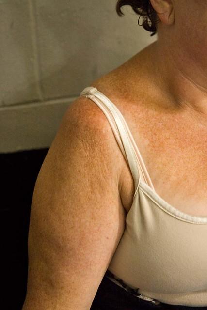 Set Shoulder Dislocation Lover a Dislocated Shoulder