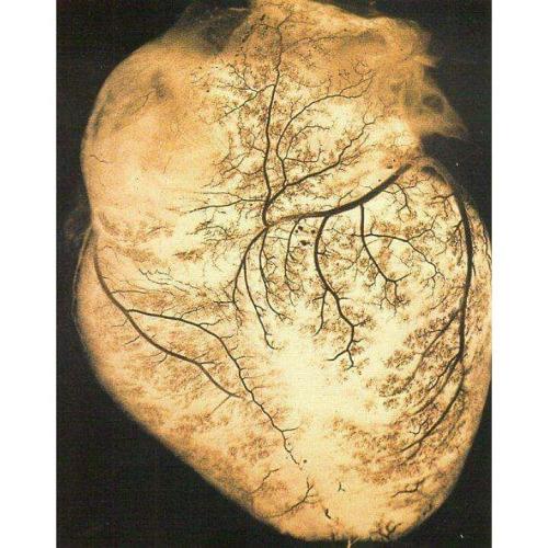 Human heart illuminated, blood vessels dendritic in silhouett