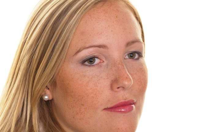Penyebab Flek Hitam Di Wajah Yang Sulit Hilang