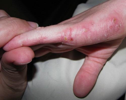 Wie gribok auf dem Nagel auf den Händen aussieht